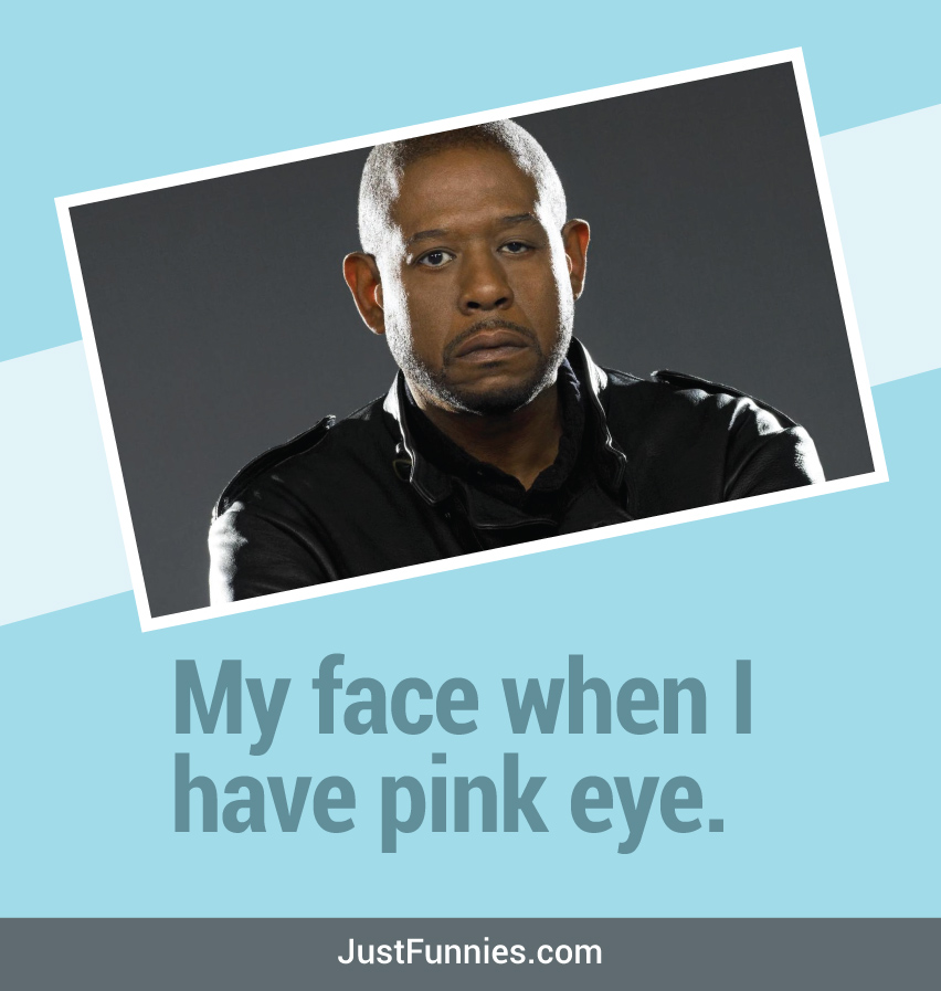 My face when I have pink eye